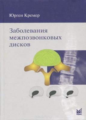 Кремер Ю. - Заболевания межпозвонковых дисков
